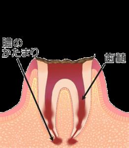 札幌市 中央区 谷口歯科診療所 一般歯科