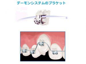 札幌市 中央区 谷口歯科診療所 矯正治療