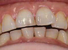 札幌市 中央区 谷口歯科診療所 顎関節症治療