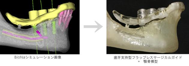 札幌市 中央区 谷口歯科診療所 インプラント治療