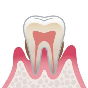 札幌 谷口歯科診療所 歯周病の進行段階 P1