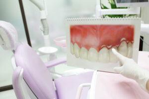 札幌市 中央区 谷口歯科診療所 口腔外科治療